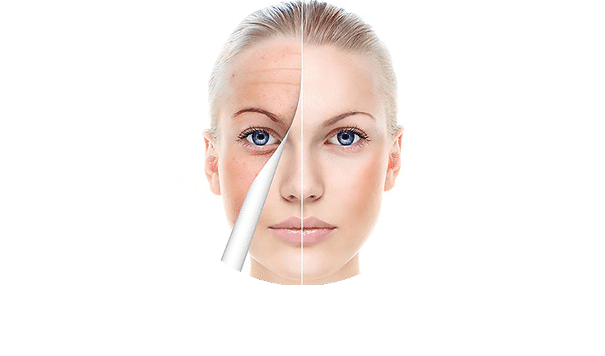 skinpeels Stirling, skinpeels Cumbernauld, skinpeels Glasgow, skinpeels Bridge of Allan, skinpeels Auchterarder