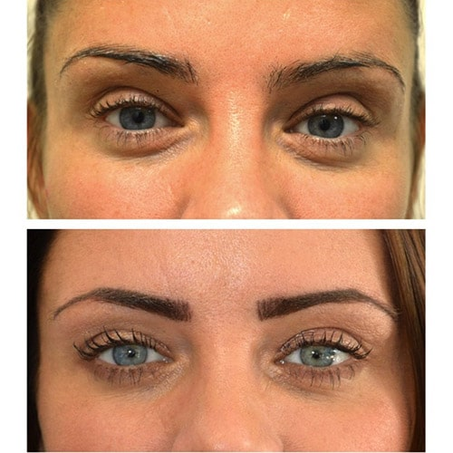 micropigmentation stirling, micropigmentation falkirk