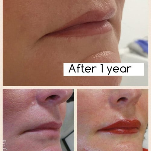 micropigmentation lips bridge of allan