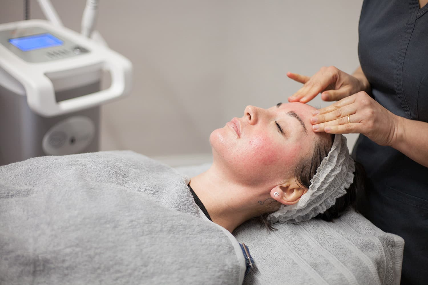 A skin peel treatment taking place at our Stirling clinic